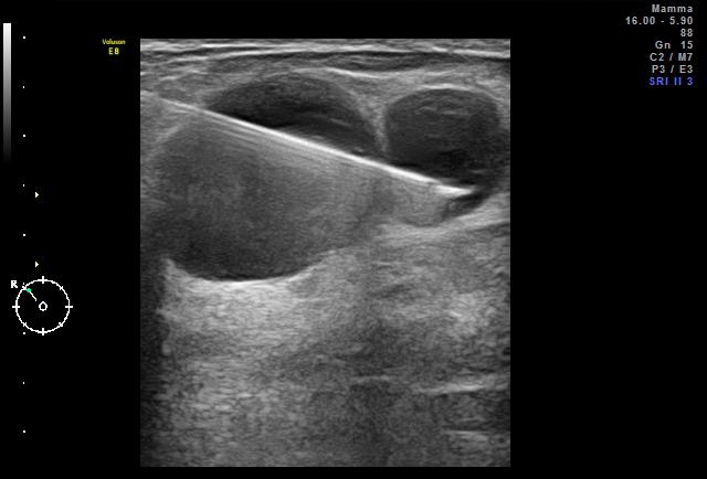 Komplexe Zysten in der Brust